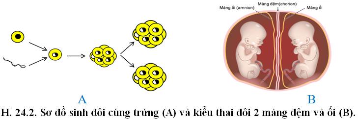Luyện thi đại học KIT-1: Môn Sinh học (Thầy Bùi Phúc Trạch) :  Bài 1. Phương pháp nghiên cứu di truyền người